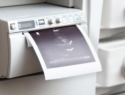 Videoprintpapier en printers