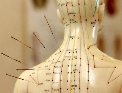 Acupunctuurnaalden en toebehoren