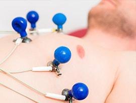 ECG-elektroden