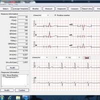 EDAN ECG-software