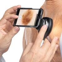 Adapter voor de NC2 dermatoscoop