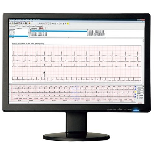 https://www.praxisdienst.nl/out/pictures/generated/product/1/800_800_100/smartholter24_langzeit_ekg_system_komplett_set_132492_1(1).jpg