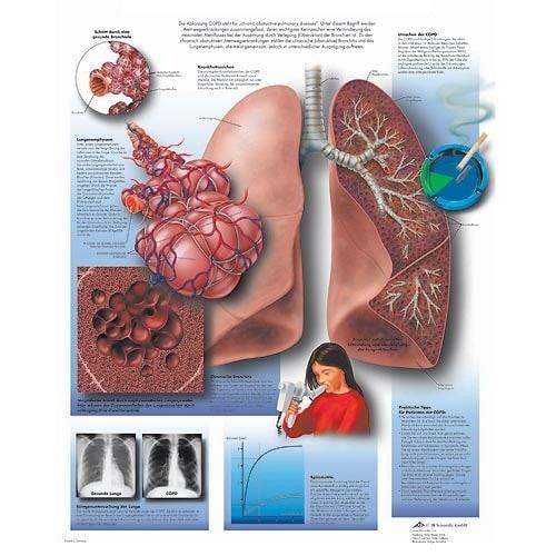 """Anatomische Wandplaat """"COPD"""""""