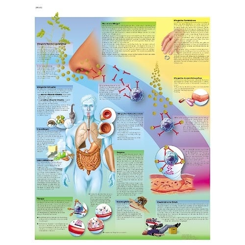 """Anatomische Wandplaat """"Allergie"""""""