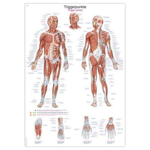 """Anatomische Wandplaat """"Fysiotherapie: Triggerpunten"""""""
