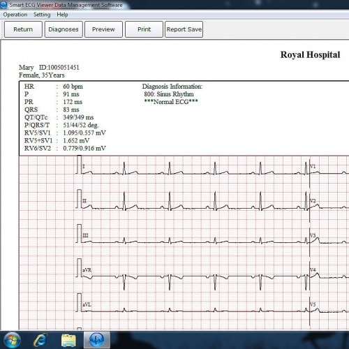 EDAN ECG-software