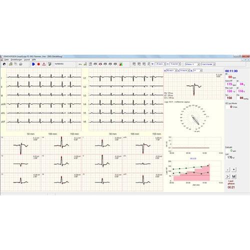 SmartScript ergometriewerkstation,