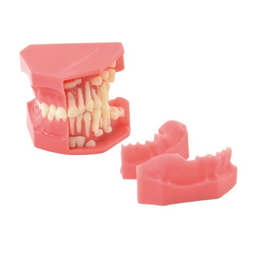 Model van de tandontwikkeling