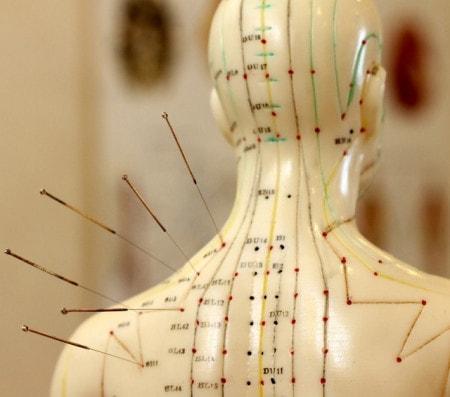 Acupunctuurnaalden
