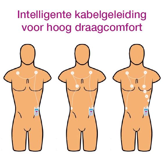 EKG Kabelführung